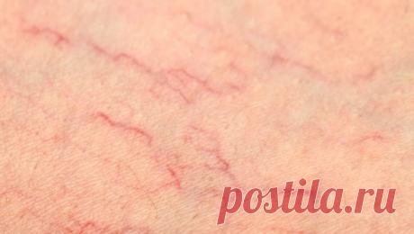 Природные средства от сосудистых звёздочек на ногах Если вам сильно досаждают эти фиолетово-красные узоры, попробуйте любой из предложенных способов лечения. Как показывает практика, регулярное применение обязательно приносит желаемый результат.