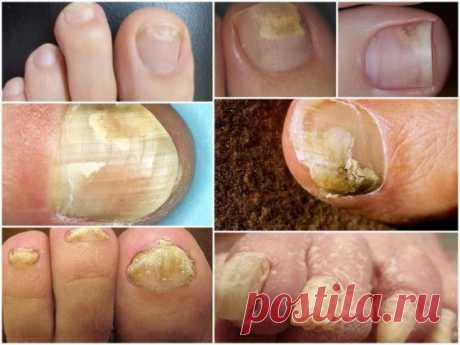 Начальная стадия грибка ногтей на ногах: фото, симптомы, лечение  Инфицирование болезнетворными грибами происходит контактным путем, а также при несоблюдении гигиены. Онихомикозом (грибком ногтевой пластины) чаще всего заражаются при использовании в быту