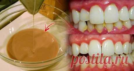 Это средство для полоскания рта удаляет зубной налет за 2 минуты   Домашнее, но не менее эффективное средство!      Помимо чистки зубов, использование жидкости для полоскания рта является еще одной важной частью гигиены полости рта. Это помогает удалять налет, дос…