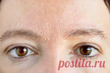 Увлажнение сухой кожи лучшими домашними методами - Образованная Сова