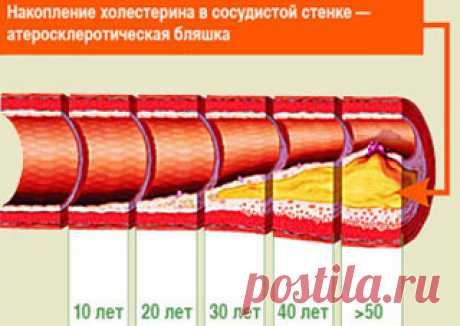 Чистка сосудов от бляшек и холестерина народными средствами