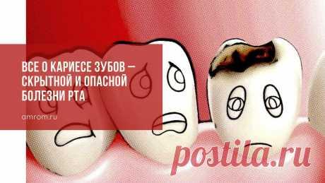 Все о кариесе зубов – скрытной и опасной болезни рта | Журнал Амром Кариес зубов. Кариес – это болезнь зубов, которая влечет за собой постепенное разрушение твердых тканей и образование дыры в зубе. По данным Всемирной организац