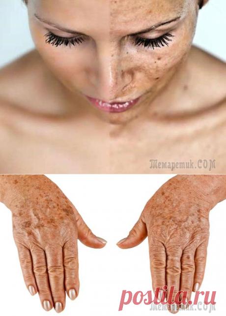 Las manchas de edad – las causas y los modos de la eliminación