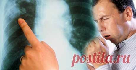Перевірені та дієві засоби для боротьби з пневмонією, щоб уникнути ускладнень Зазвичай пневмонію потрібно лікувати у лікарні, але якщо хвороба протікає у легкій формі, її можна лікувати амбулаторно. Якщо вчасно діагностувати та розпочати лікування, хвороба може пройти без ускладнень.    Найпоширенішими ускладненнями пневмонії є абсцес легень, плеврит та