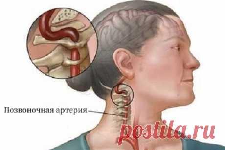 Синдром позвоночной артерии при шейном остеохондрозе – БУДЬ В ТЕМЕ