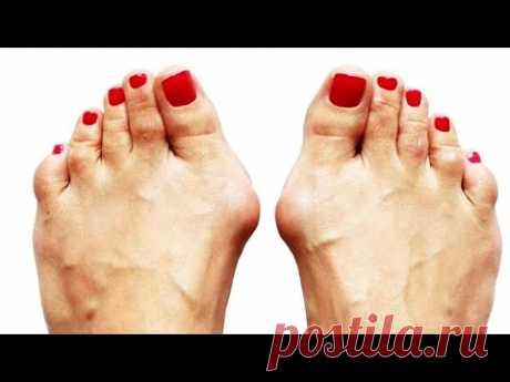МУЖСКОЕ здоровье, УПРАЖНЕНИЯ от доктора Агапкина, КОСТОЧКИ на ногах | О самом главном
