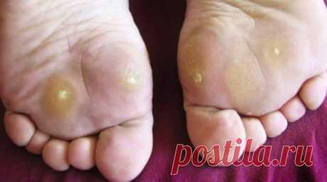 Больная тема – натоптыши на ногах. Избавьтесь от неприятной проблемы в домашних условиях! Натоптыши (сухие мозоли) это уплотнение поверхностного слоя кожи на ступнях (скопление омертвевших...