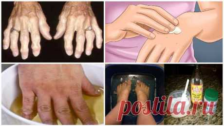 Попробуйте эти народные средства  и избавьтесь от артрита и  боли раз и навсегда! Прекрасные средства, которые облегчают боль!