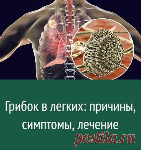 Грибок в легких: причины, симптомы, лечение