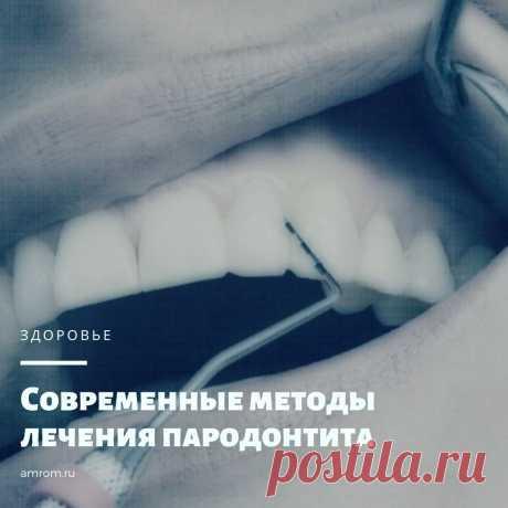 Современные методы лечения пародонтита | Журнал Амром Методы лечения пародонтита. Пародонтит – это стоматологическое заболевание, что имеет воспалительный характер своего течения. При данной патологии наблюдается р