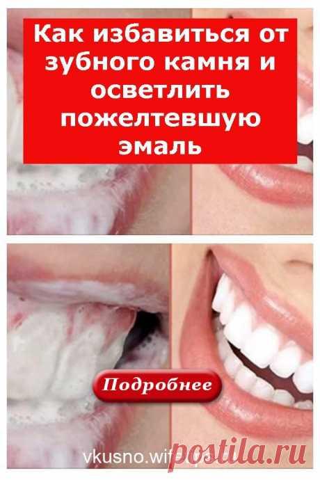Как избавиться от зубного камня и осветлить пожелтевшую эмаль - vkusno