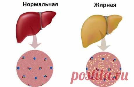 Советы по борьбе с жировой болезнью печени - Шаг к Здоровью