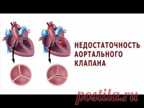 Что нужно знать о недостаточности аортального клапана