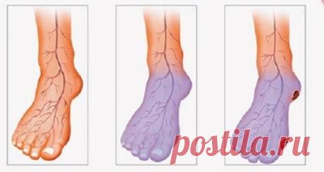 Плохое кровообращение, холодные руки и ноги? Вот что вы можете сделать, чтобы решить эту проблему!