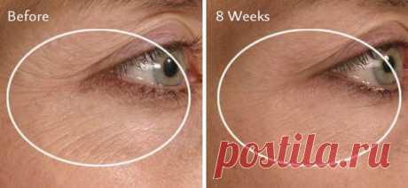 Используйте вазелин, чтобы избавиться от морщин на вашем лице