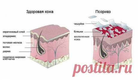 Псориаз — не заболевание кожи!