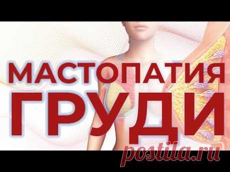 РАК ГРУДИ И МАСТОПАТИЯ - главные женские болезни. - YouTube