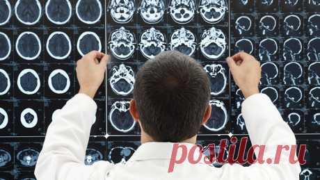 «Депрессия — не диагноз, а симптом»: психиатр — о влиянии на мозг спорта, смартфонов и антидепрессантов