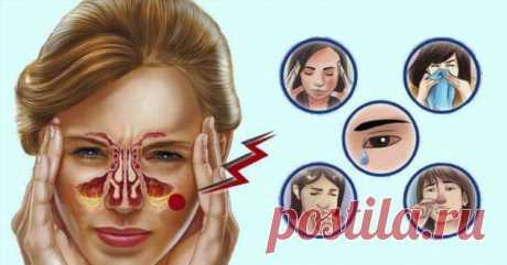 Травы от заложенности носа и облегчения головной боли   Люблю Себя