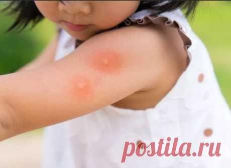 Зуд от укуса комара: чем снять, как избавиться, народные средства