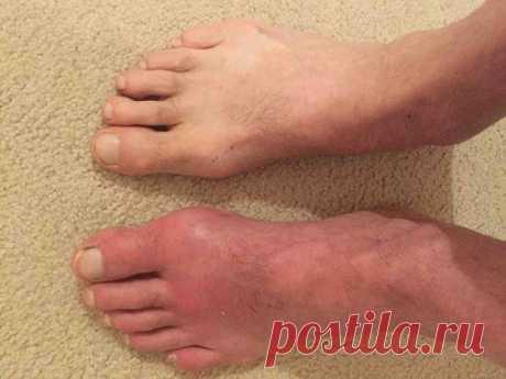 Причины, симптомы и лечение подагры   Подагра заболевание суставов заболевание распространено среди мужчин после 40 лет, связано с накоплением в организме солей мочевой кислоты. Причина возникновения подагры чрезмерное употребление спир…