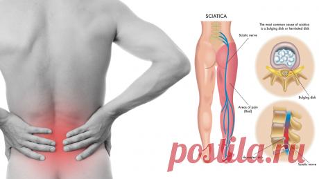 8 растяжек ишиаса, которые предотвращают и облегчают боль в нижней части спины - Упражнения и похудение Попробуйте! Наслаждение растяжкой может поразить любого, кто никогда не пробовал. Сильная боль от ишиаса может вызвать желание экспериментировать с новым подходом к облегчению боли. Самый длинный нерв вашего тела — седалищный, и он простирается от позвоночника через ягодицы и вниз по ногам. Эти растяжки ишиаса заставляют ваши мышцы чувствовать себя хорошо, но вам нужно прекратить …