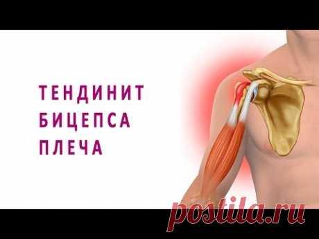 Тендинит бицепса плеча