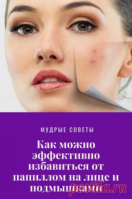 Как можно эффективно избавиться от папиллом на лице и подмышками  https://mojakuhnja.ru/kak-mozhno-effektivno-izbavitsya-ot-papillom-na-lice-i-podmyshkami/