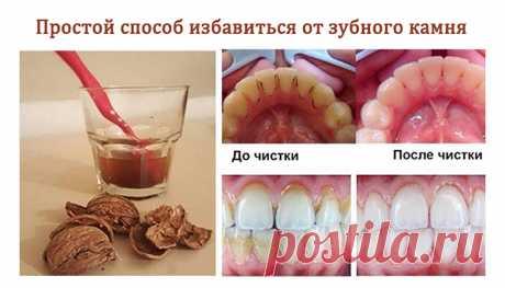 Не обязательно идти к стоматологу, чтобы избавиться от зубного камня!   Душа девушки