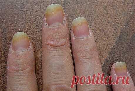Болезни ногтей | Похудей навсегда