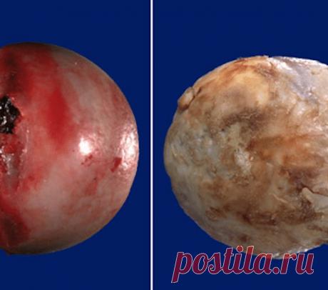Артрит и артроз: разница в симптомах и отличия в лечении   суставы   Постила