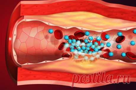 Осторожно! Продукты, усиливающие тромбоз | Здоровое сердце и сосуды | Яндекс Дзен