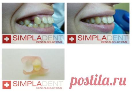 Какие протезы лучше, если нет зубов?   Портал о зубах Симпладент   Яндекс Дзен