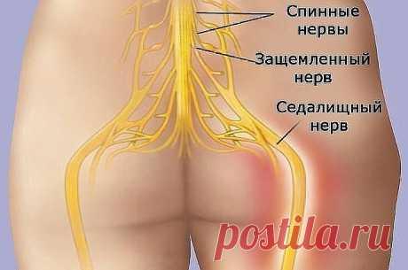 """HOW TO UNBLOCK THE SCIATIC NERVE\u000d\u000aHow to unblock a sciatic nerve: 2 easy ways to kill pain\u000d\u000aThe sciatic nerve originates in lumbar department of a backbone and, passing through buttocks, reaches for a foot. Therefore pain at its jamming is felt especially strongly. \u000d\u000aAs a rule, the term \""""jamming\/infringement of a sciatic nerve\"""" means loss of elasticity and flexibility of muscles of a back surface of a leg. It is often connected with process of age shortening (rigidnost) we..."""