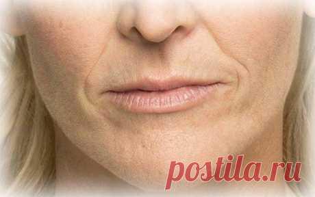 Кисетные морщины: как справиться со складочками вокруг рта Нередко женщины после 30 лет замечают возле губ небольшие морщины, которые со временем становятся более глубокими. Это кисетные морщины. Складки, образованные вокруг рта, старят лицо. Порой из-за них ...
