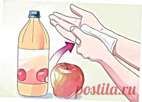 Как вывести бородавку яблочным уксусом — СОВЕТНИК