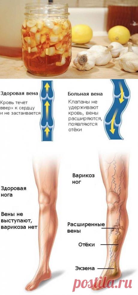 Вены нижних конечностей лечение.