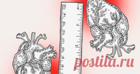 Заблуждения о высоком давлении, которые могут стоить вам жизни