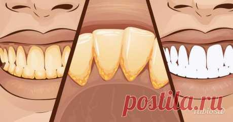Как избавиться от зубного камня в домашних условиях. Простой рецепт