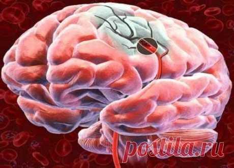 Профилактика инсульта и предшествующие ему симптомы Инсульт - вторая по частоте причина смерти среди людей старше 60 лет. Причина инсульта - закупорка или разрыв одного из кровеносных сосудов головного мозга