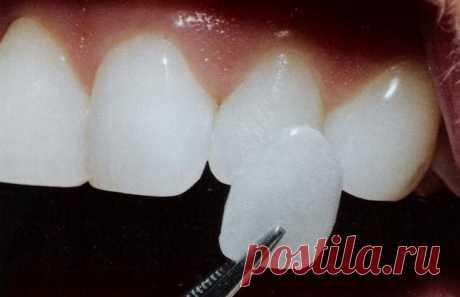 Восстановление зубов винирами. В чем преимущества.