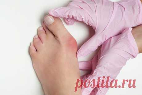 Как лечить косточку на ногах