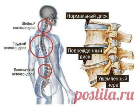 Снять зажатие нерва и убрать боль в спине поможет мануальный терапевт в Спб!