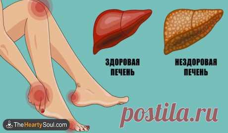 Вот как ваше тело демонстрирует что ваша печень в опасности Вот как ваше тело демонстрирует, что ваша печень в опасности.Прислушайтесь!15 симптомов, которые надо знать как свои 5 пальцев.Когда процесс