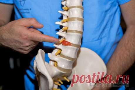 La hernia pozvonochnaya: los síntomas y los modos del tratamiento de la Enfermedad del aparato locomotor se acompañan del síndrome expresado doloroso y empeoran esencialmente la cualidad de la vida. En este material es contado, cómo sanar la hernia de la columna vertebral poyasnichnog...