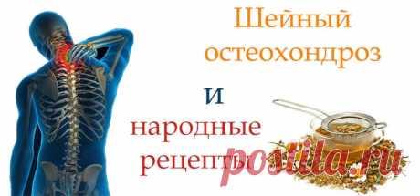 Шейный остеохондроз - народные рецепты