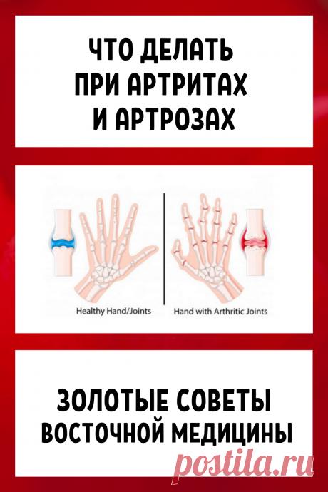 Что делать при артритах и артрозах: золотые советы восточной медицины..