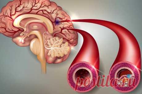 Способы чистки сосудов головного мозга в домашних условиях Чистка сосудов – это эффективный способ профилактики инсульта и атеросклероза. Процедура рекомендована для всех людей, которые желают улучшить самочувствие. О забитости сосудов свидетельствуют частые