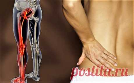 Если у вас беспокоит воспаление седалищного нерва или просто боль в спине — попробуйте это средство и вы забудете об этой боли навсегда! » Страница 2 » ЧапЧап