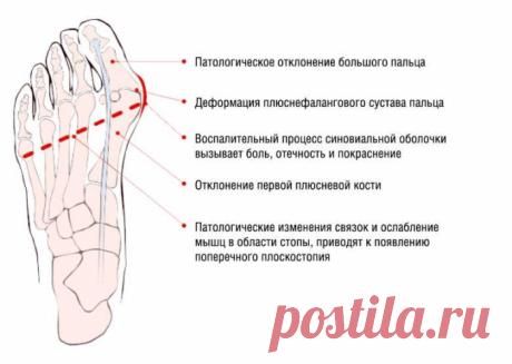 Косточки на ногах: избавляемся просто и без боли. И операции не нужно